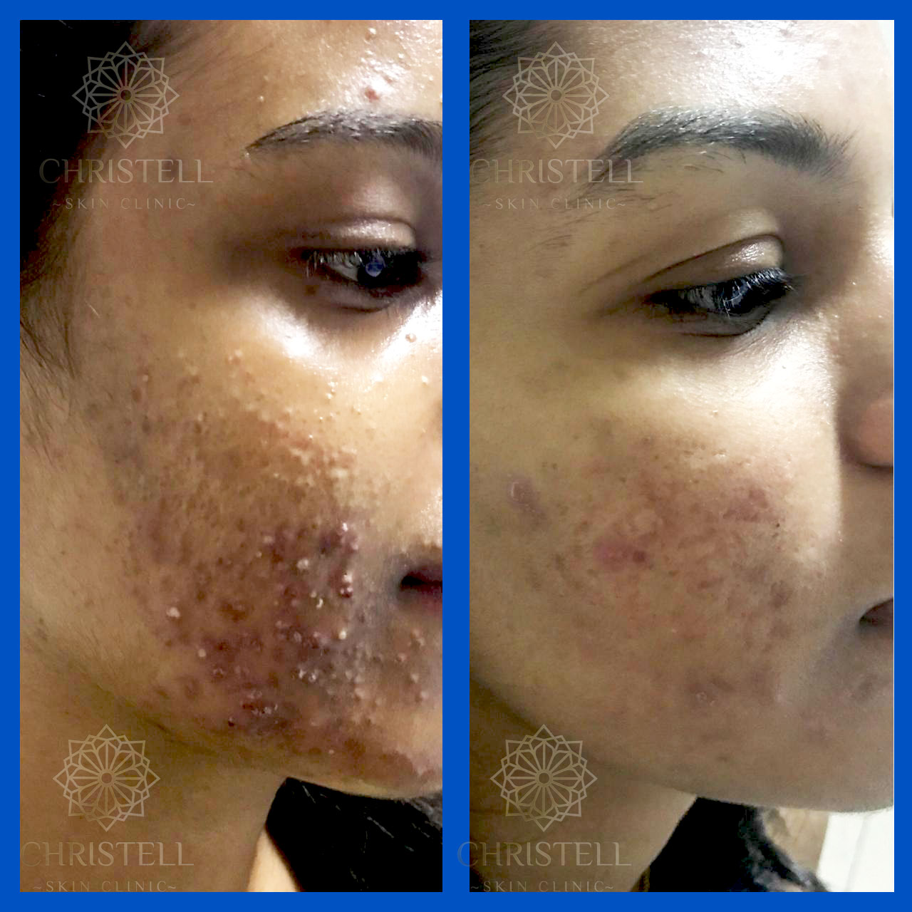 3 Acne Treatments At Christell
