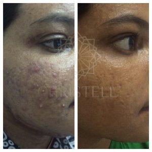IMG_1110_wm-300x300 Acne Treatments At Christell