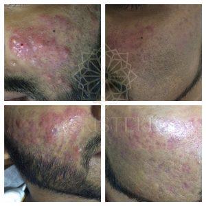 IMG_4351_wm-300x300 Acne Treatments At Christell