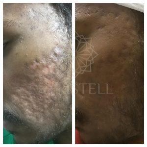 IMG_6426_wm-300x300 Acne Treatments At Christell