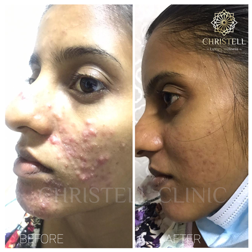 acne-girl-2-1 Acne Treatments At Christell