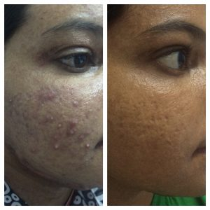 Acne-Scares-Christell-1-300x300 Before/After Gallery