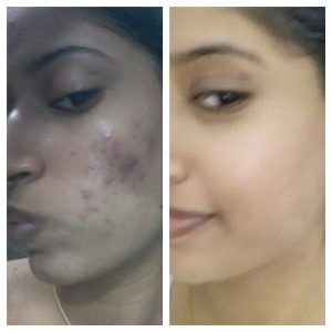 Acne-Scares-Christell-3-300x300 Before/After Gallery