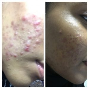 Acne-Scares-Christell-4-300x300 Before/After Gallery