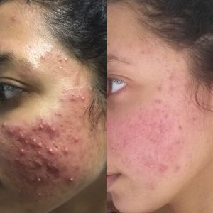 Acne-Scares-Christell-5-300x300 Before/After Gallery