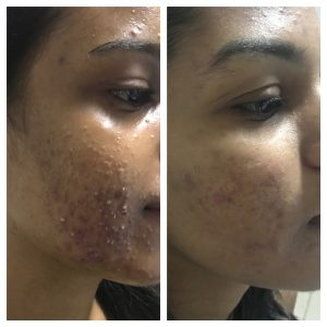 Acne-Scares-Christell-6-300x300 Before/After Gallery