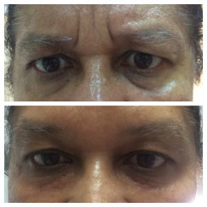 Botox-christell-1-300x300 Before/After Gallery