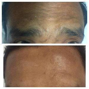 Botox-christell-2-300x300 Before/After Gallery