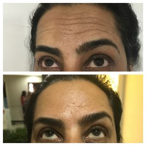 Botox-christell-3-300x300 Before/After Gallery