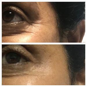 Botox-christell-4-300x300 Before/After Gallery