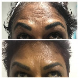 Botox-christell-5-300x300 Before/After Gallery