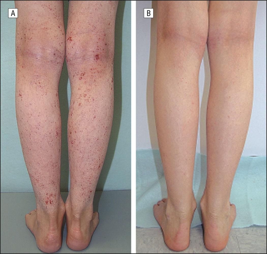 DRY-SKIN-1 Dry Skin / Xerosis