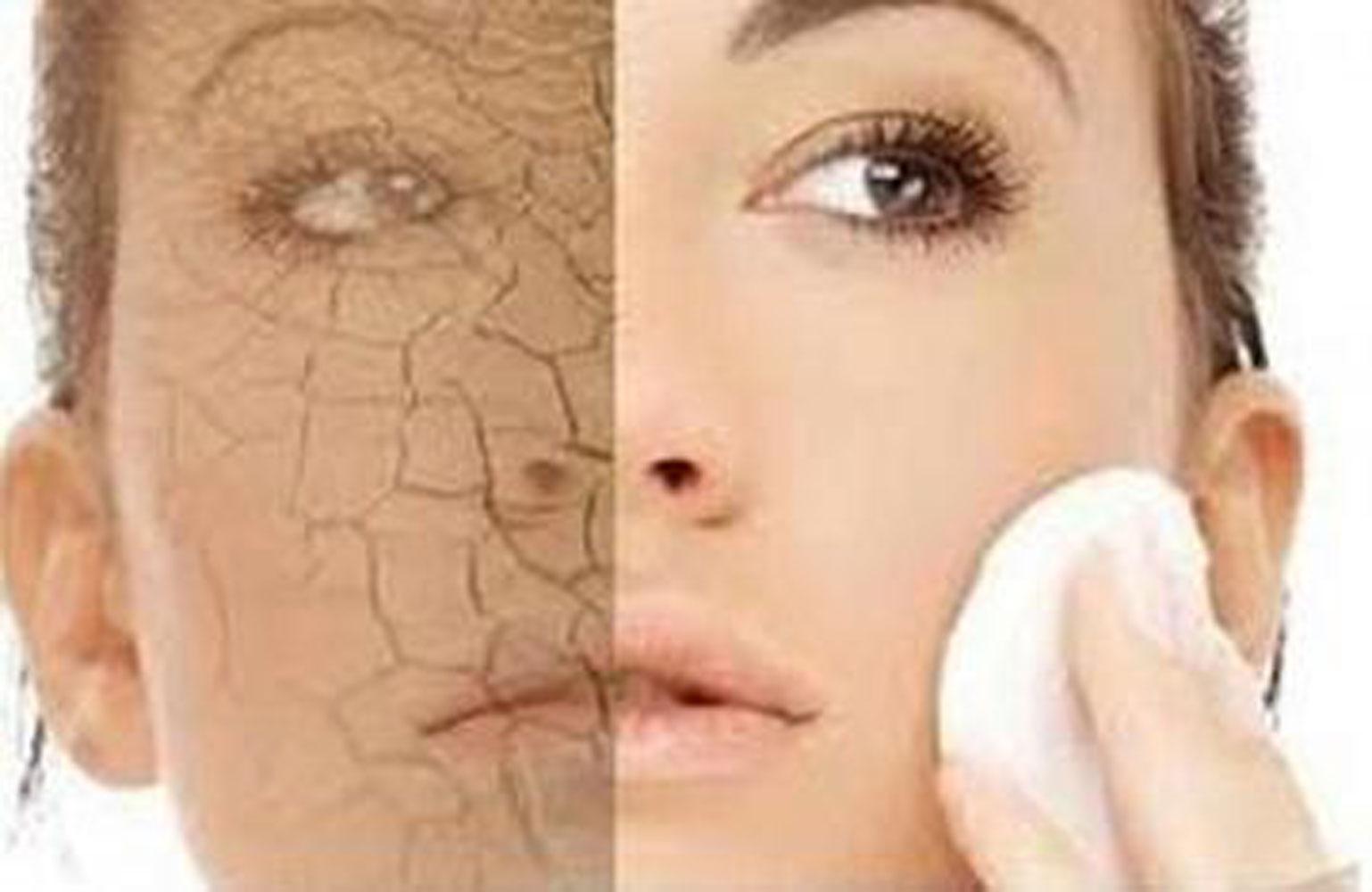 DRY-SKIN-2 Dry Skin / Xerosis