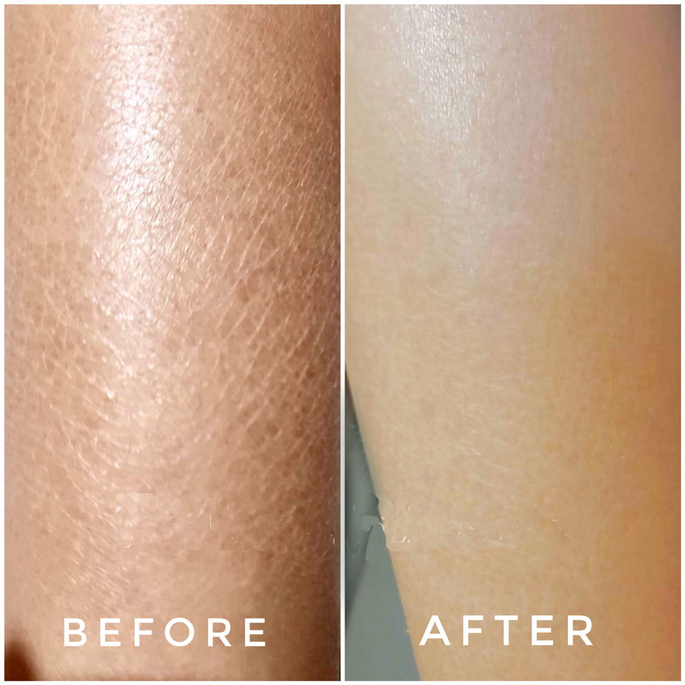 DRY-SKIN-3 Dry Skin / Xerosis