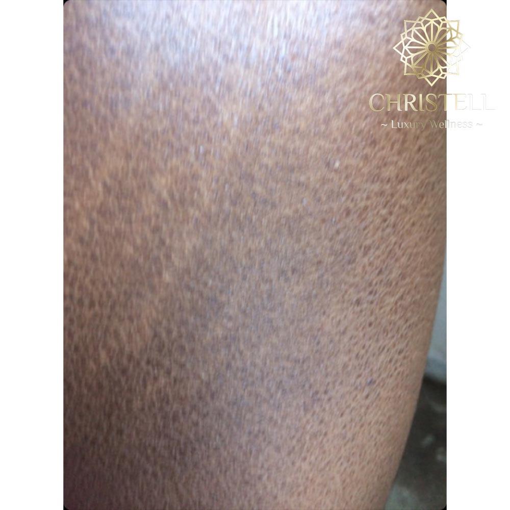 IMG_3971 Dry Skin / Xerosis