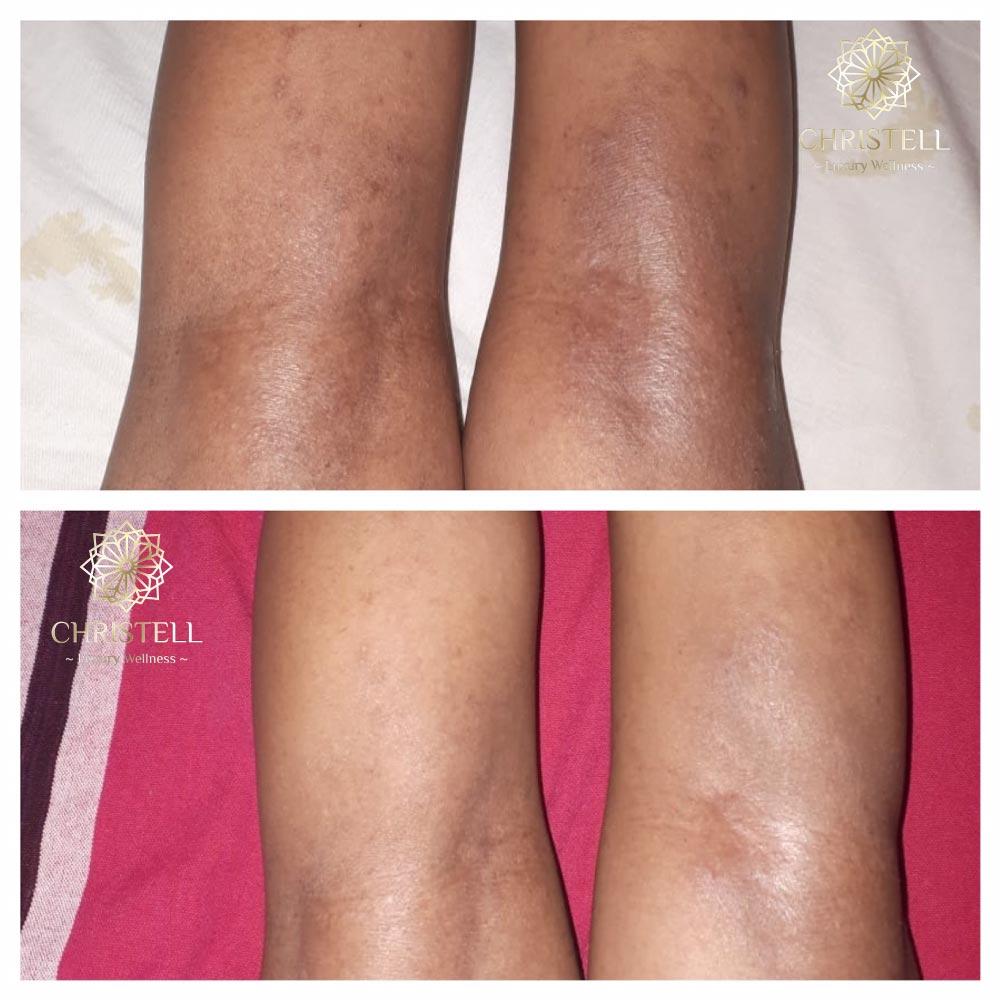 image0 Dry Skin / Xerosis