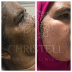 CHEMICAL-PEEL2-150x150 Fraxel RF Skin Tightening