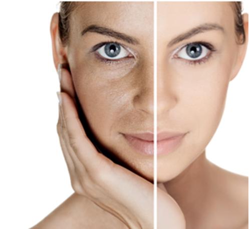 skin-polishing-therapy-500x500 Skin Polishing