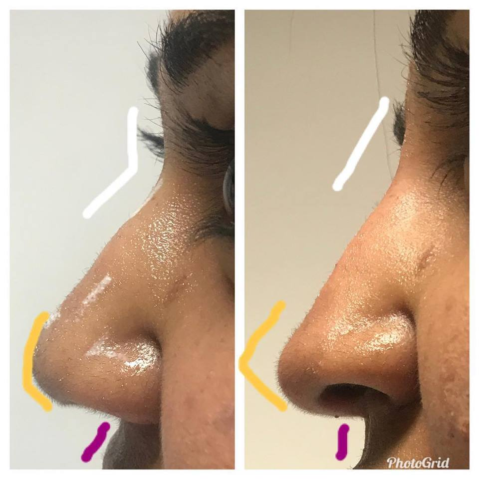 26730594_10159732197430507_4131746217303719809_n Dermal Fillers (Cheeks,Eyes,Lips, Face)
