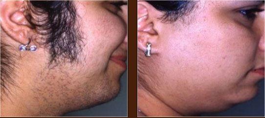 8648a025b8cf60b8e6397721c43d244c Excessive Hair Growth