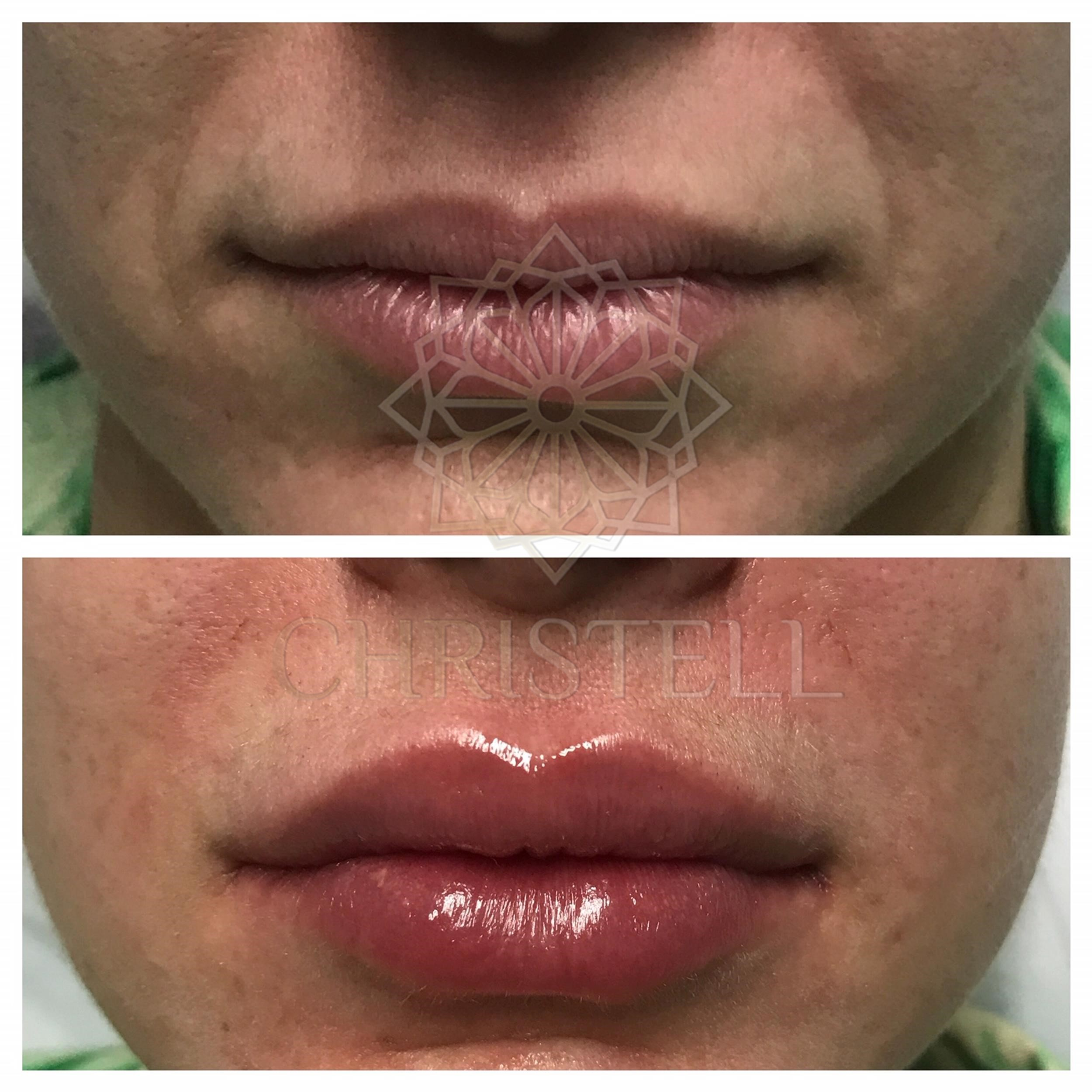 IMG_1333_wm Dermal Fillers (Cheeks,Eyes,Lips, Face)