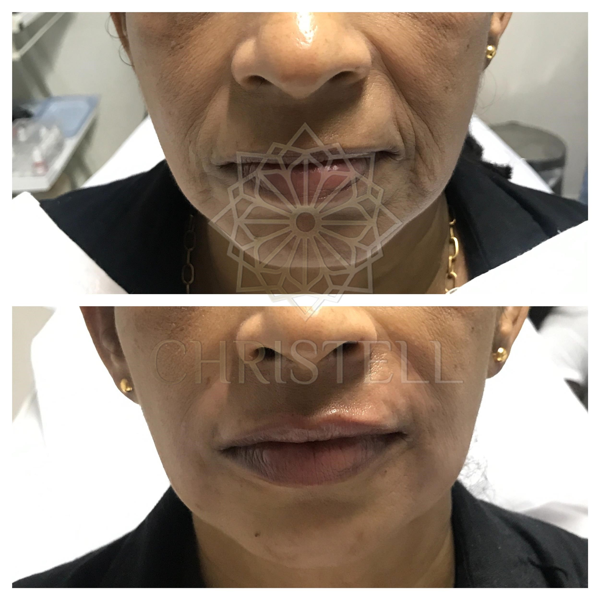 IMG_1905_wm-1 Dermal Fillers (Cheeks,Eyes,Lips, Face)