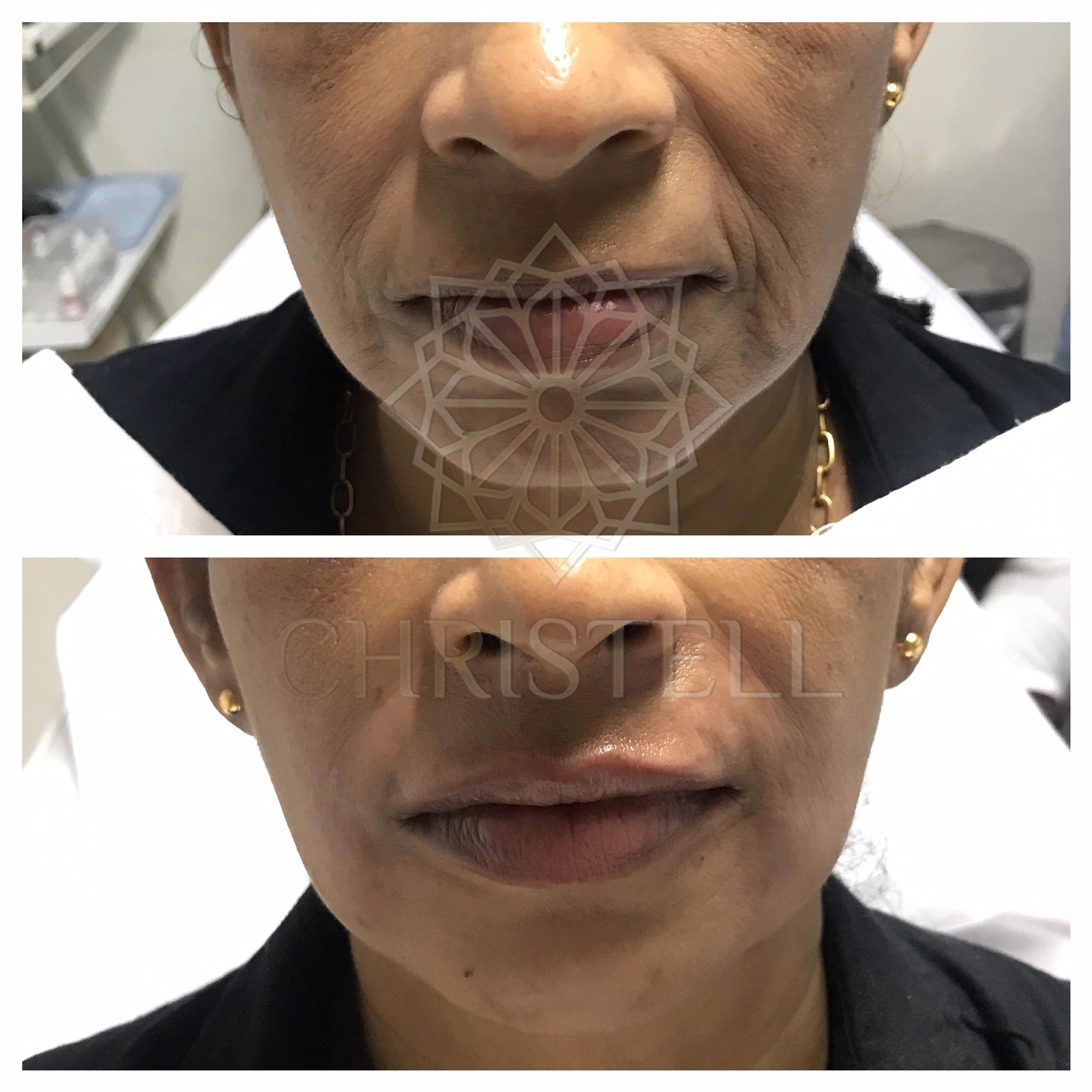 IMG_1905_wm-2 Dermal Fillers (Cheeks,Eyes,Lips, Face)