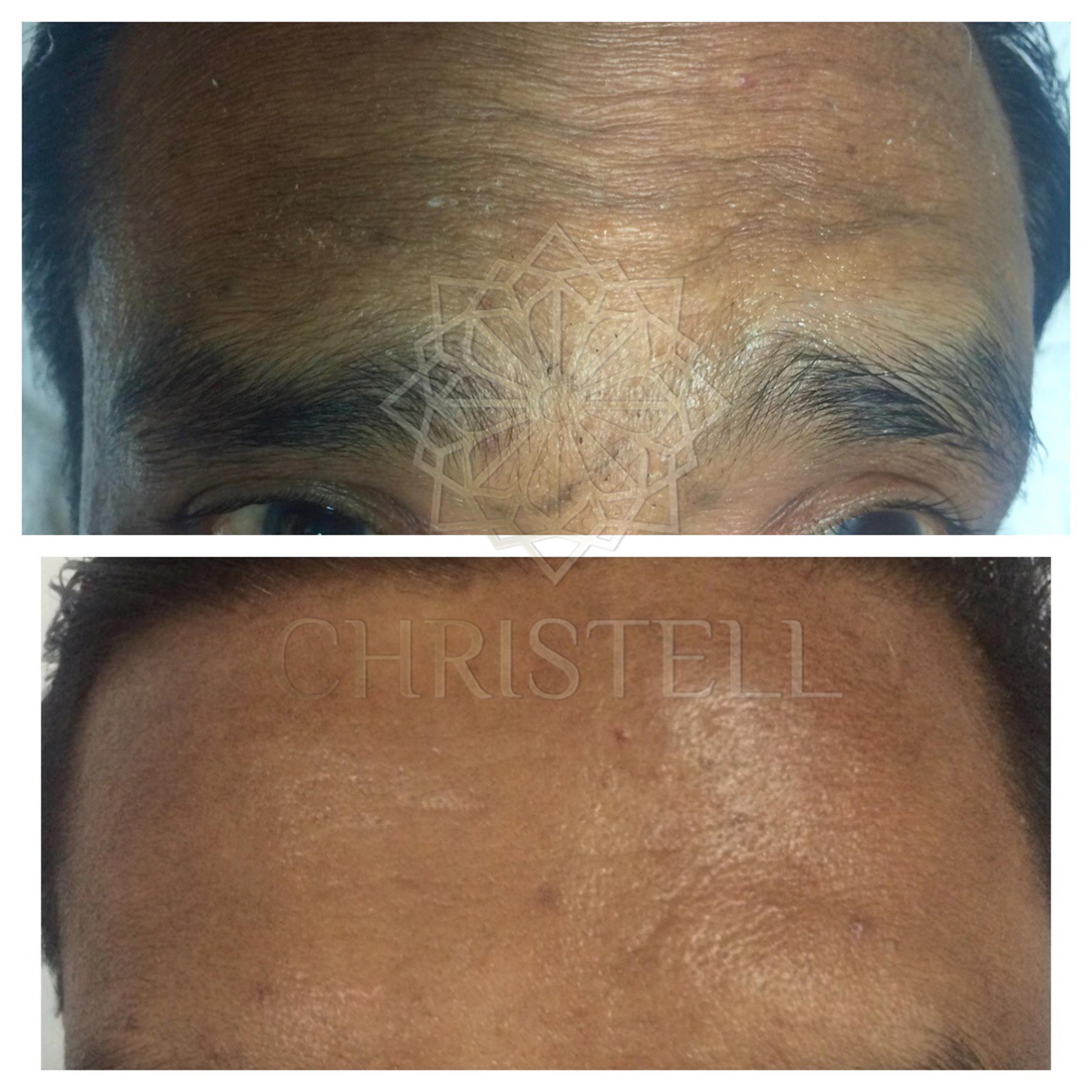 IMG_4544_wm Botox Treatment