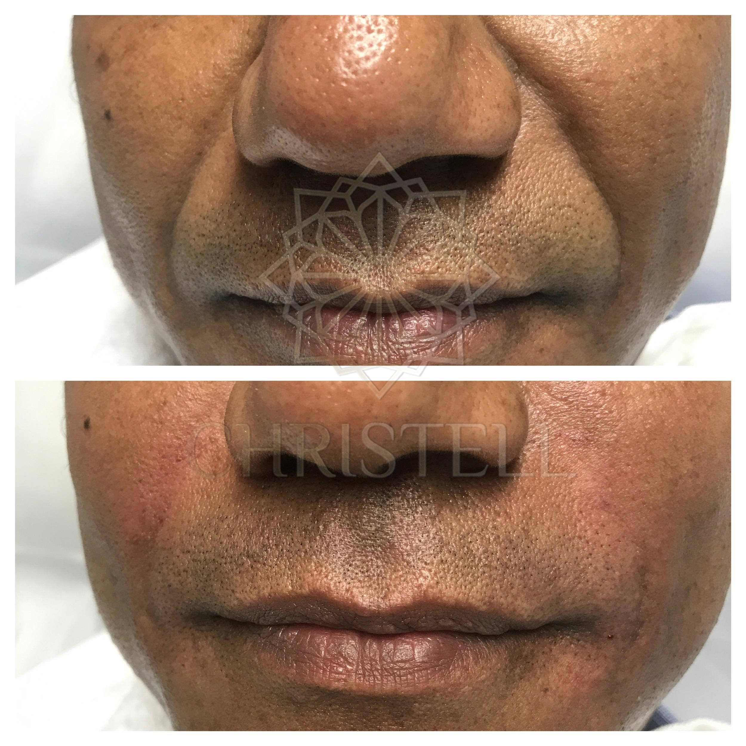 IMG_5548_wm Dermal Fillers (Cheeks,Eyes,Lips, Face)