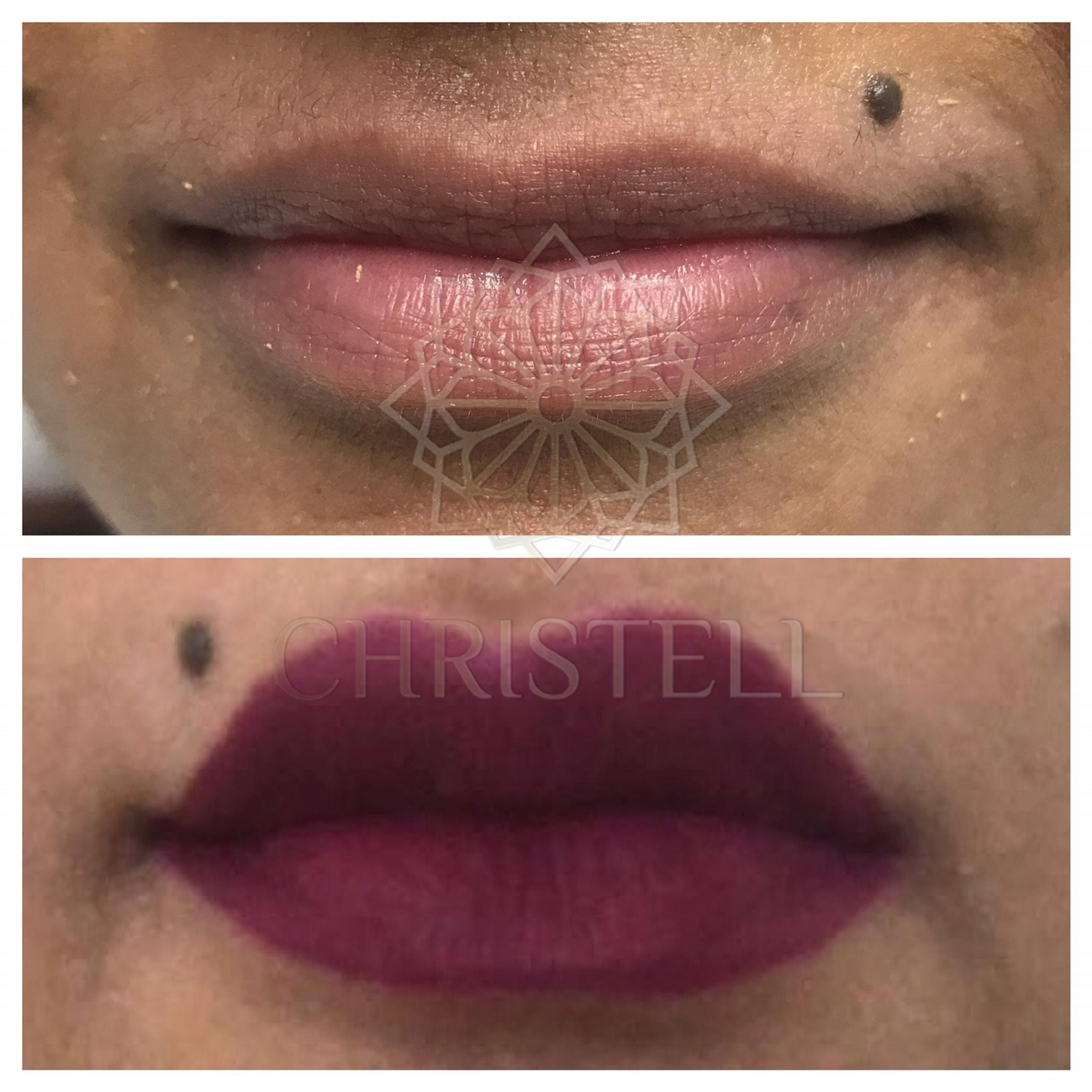 IMG_5738_wm Dermal Fillers (Cheeks,Eyes,Lips, Face)