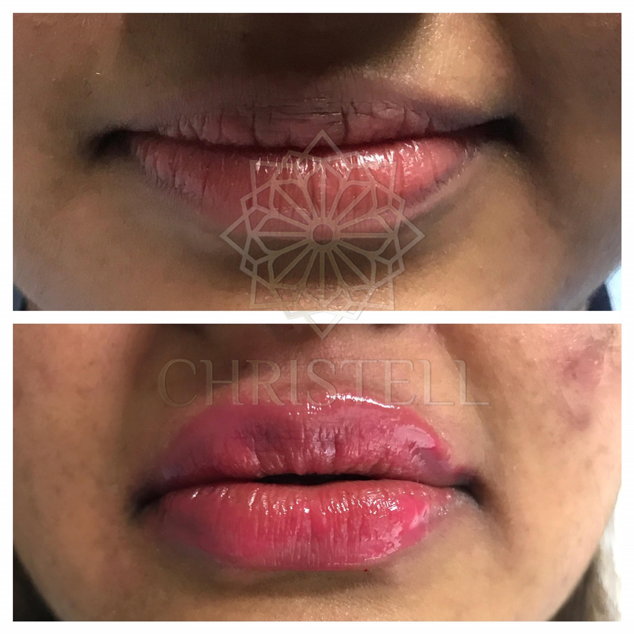 IMG_5768_wm Dermal Fillers (Cheeks,Eyes,Lips, Face)