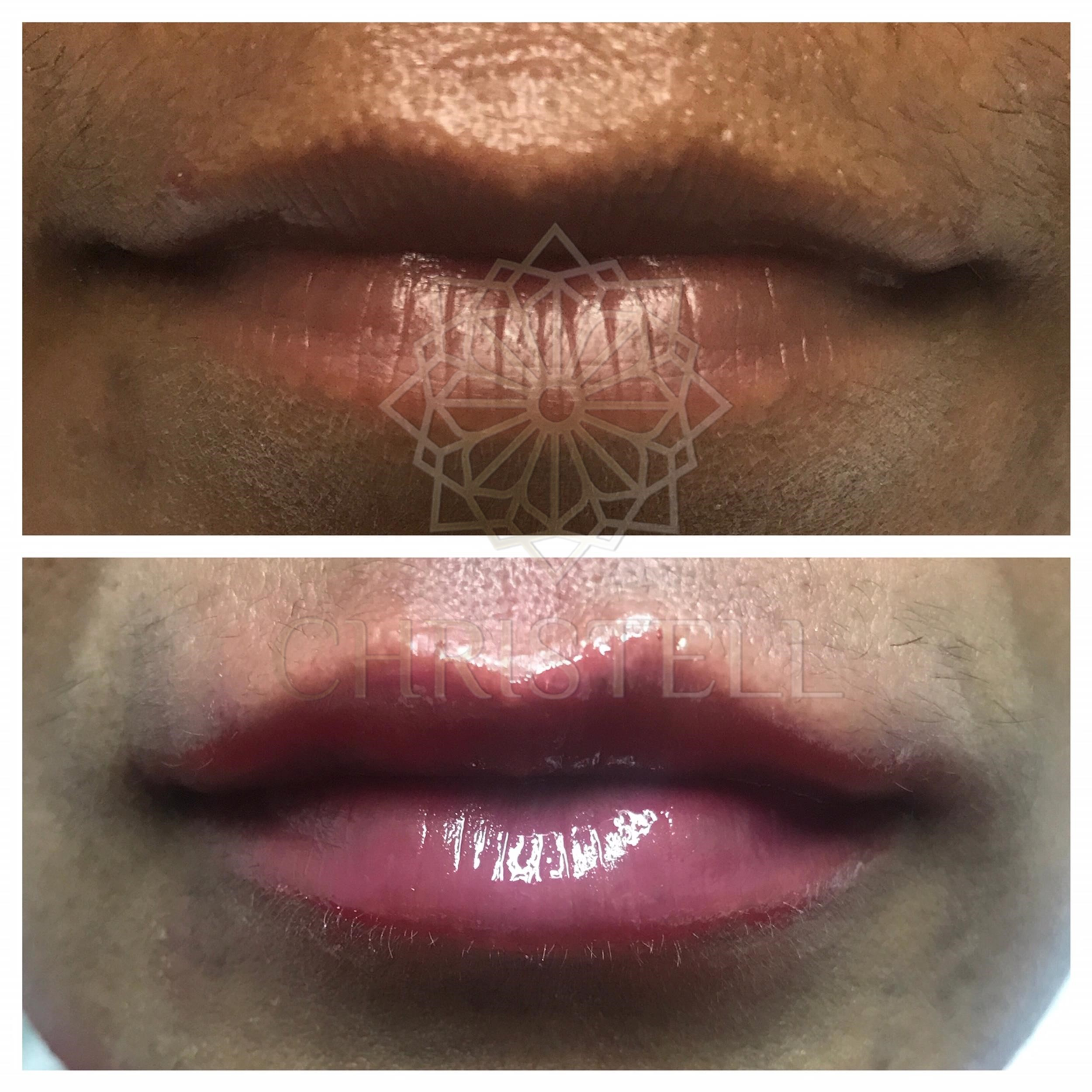 IMG_5812_wm Dermal Fillers (Cheeks,Eyes,Lips, Face)