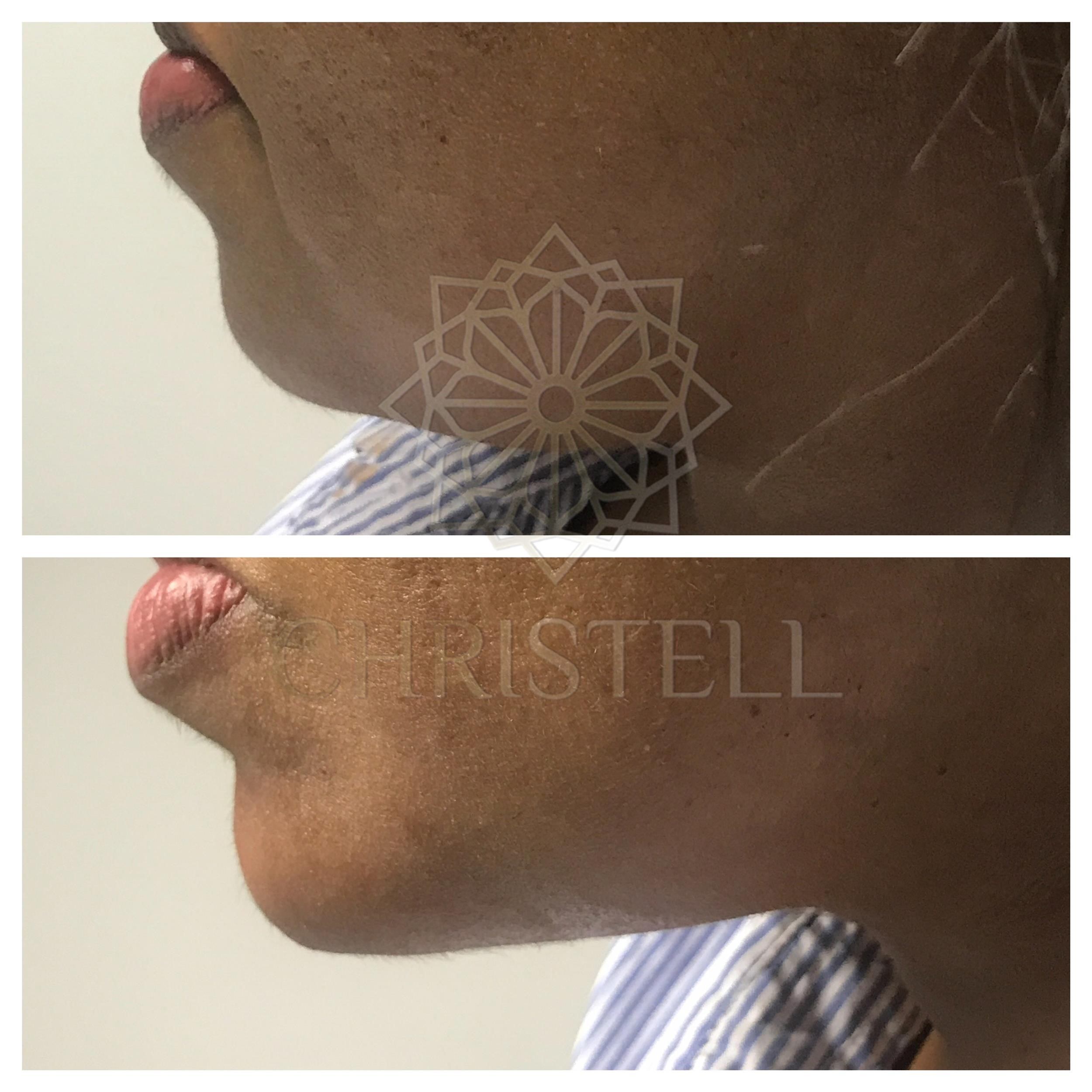 IMG_6047_wm Dermal Fillers (Cheeks,Eyes,Lips, Face)
