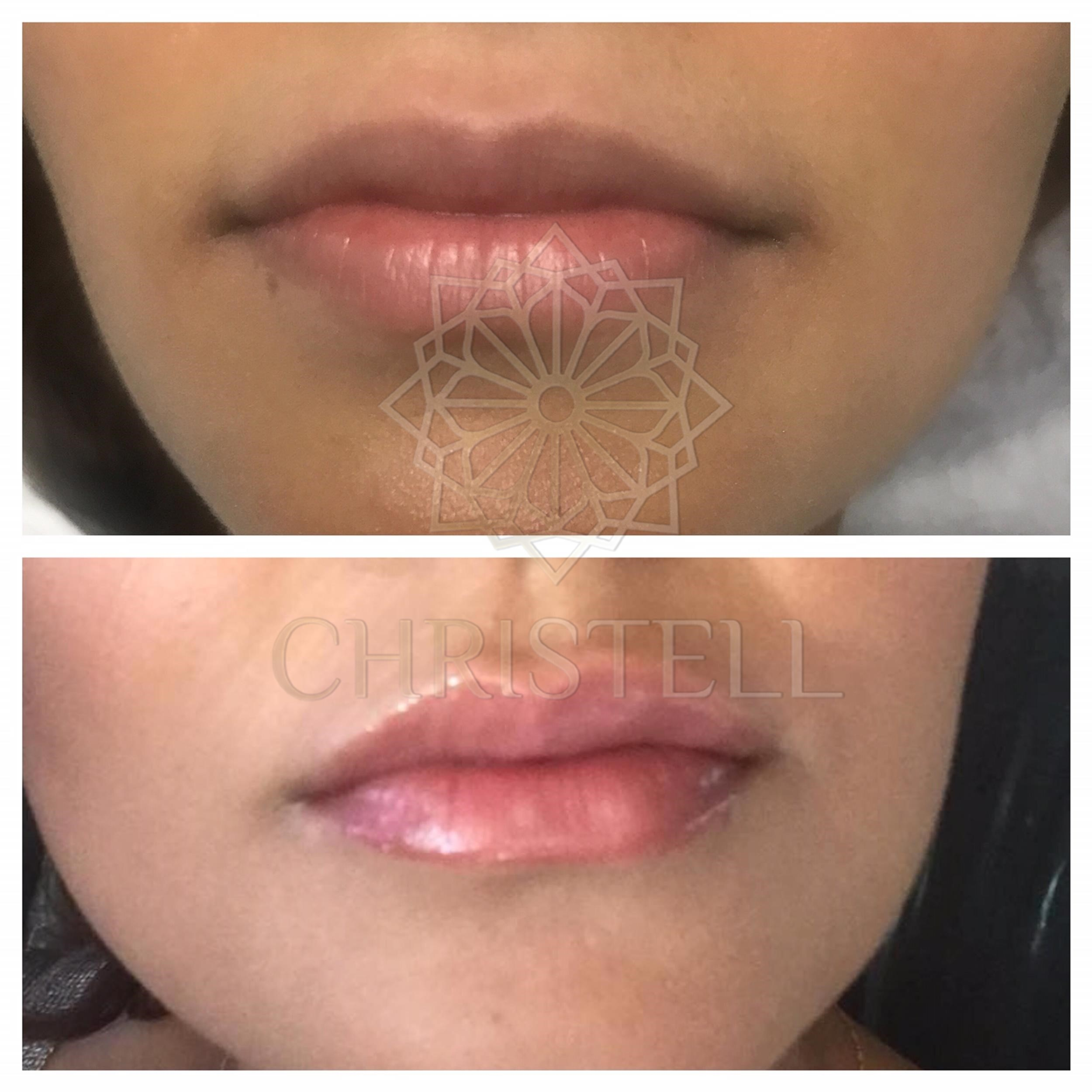 IMG_6624_wm Dermal Fillers (Cheeks,Eyes,Lips, Face)