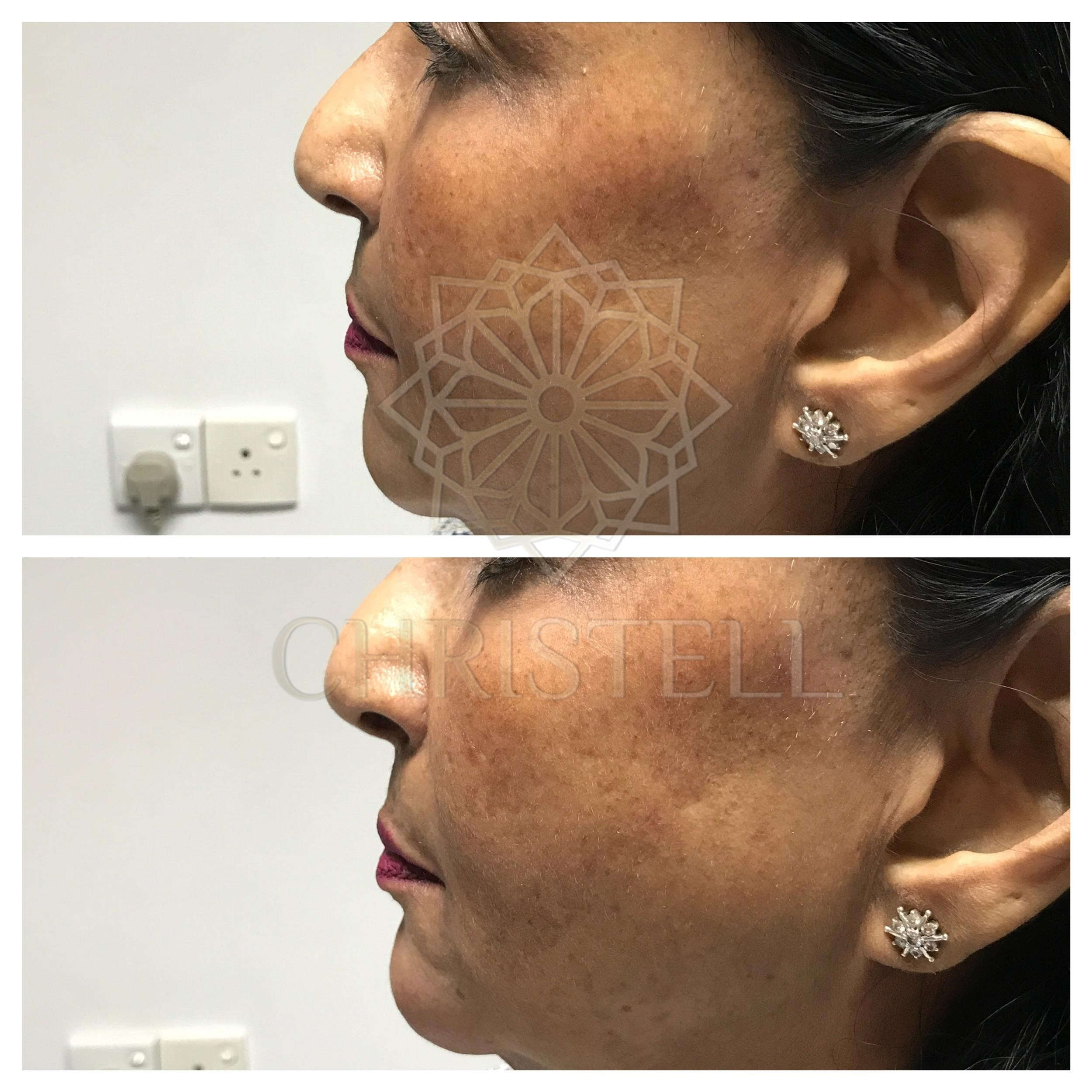 IMG_7027_wm Dermal Fillers (Cheeks,Eyes,Lips, Face)