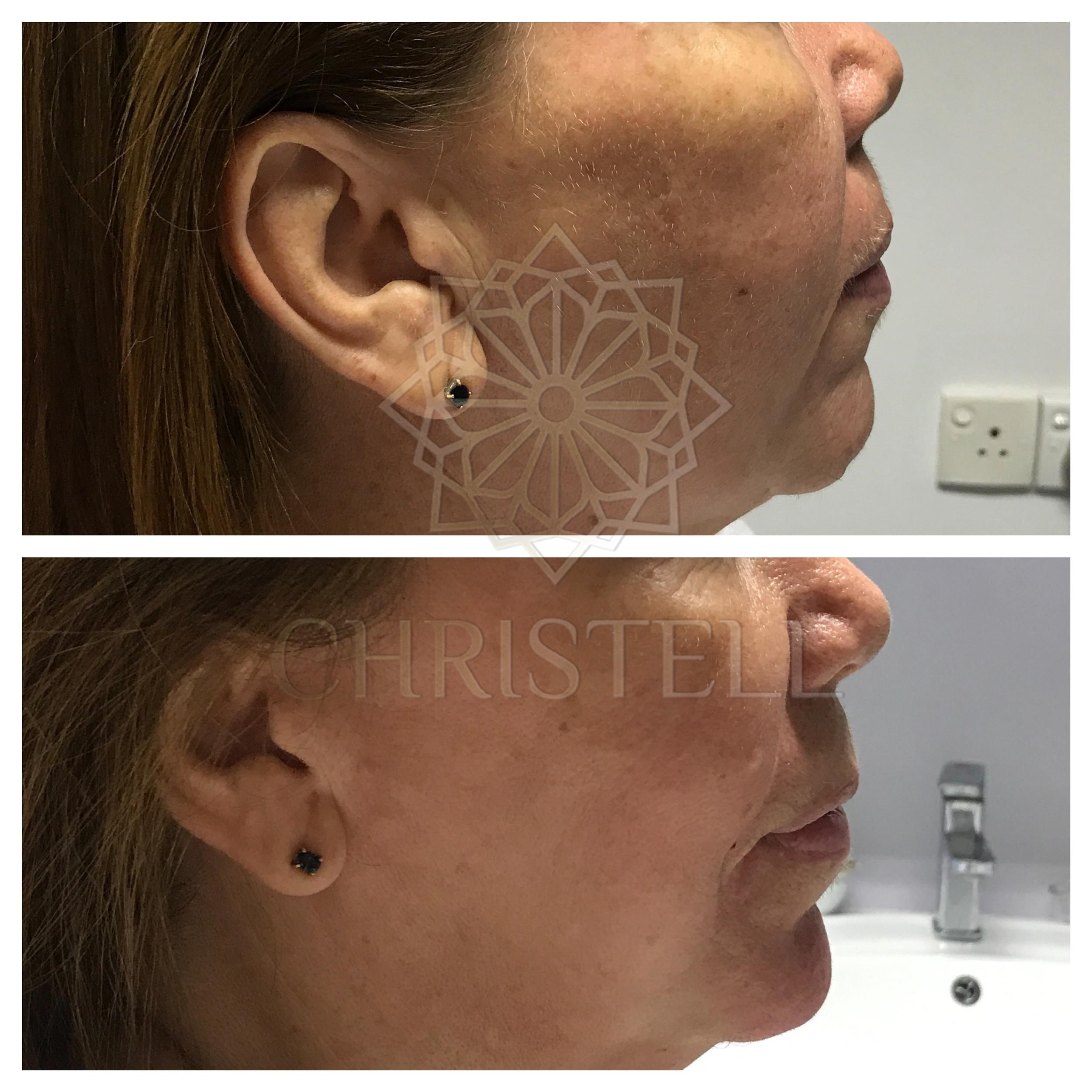 IMG_7044_wm Dermal Fillers (Cheeks,Eyes,Lips, Face)