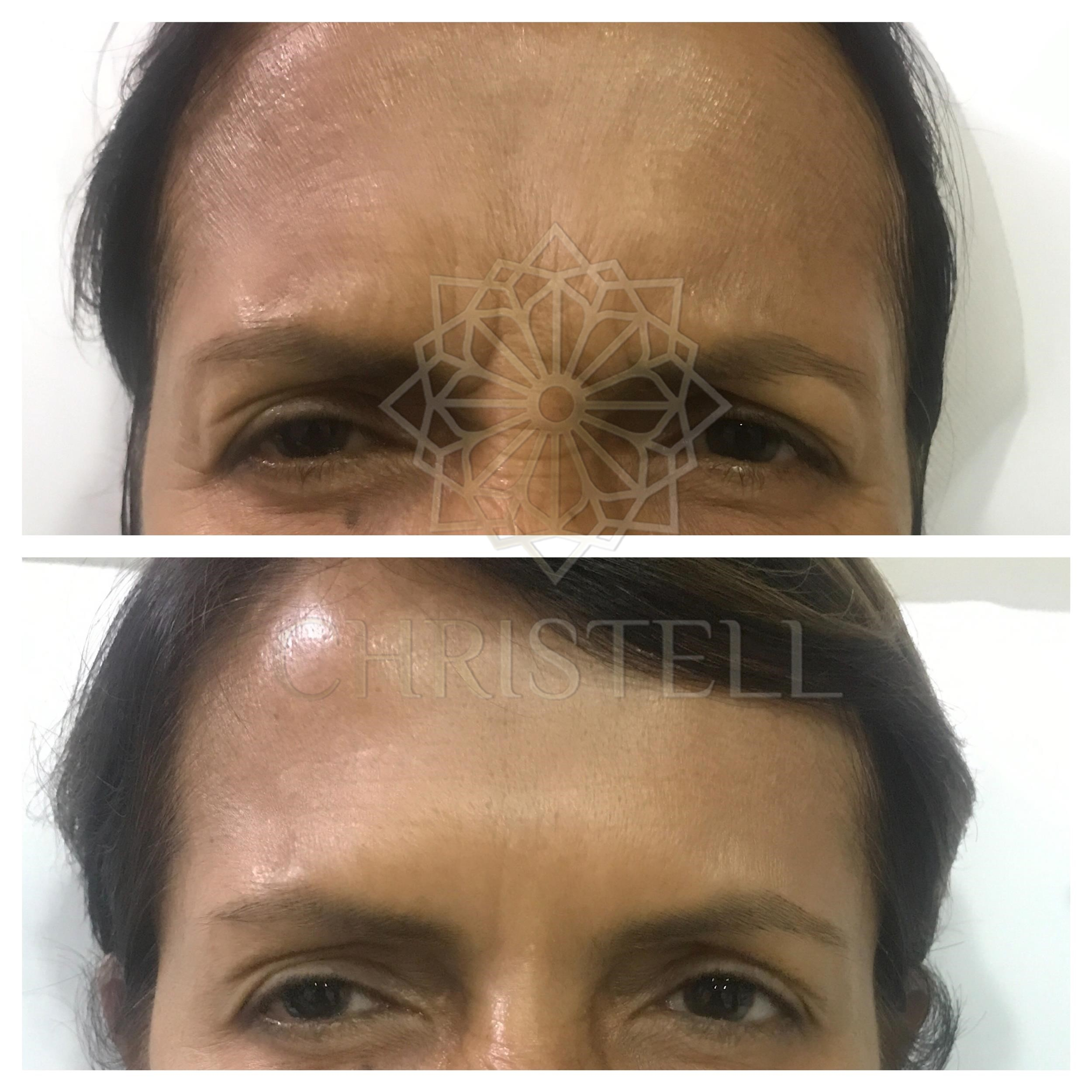 IMG_7174_wm Botox Treatment