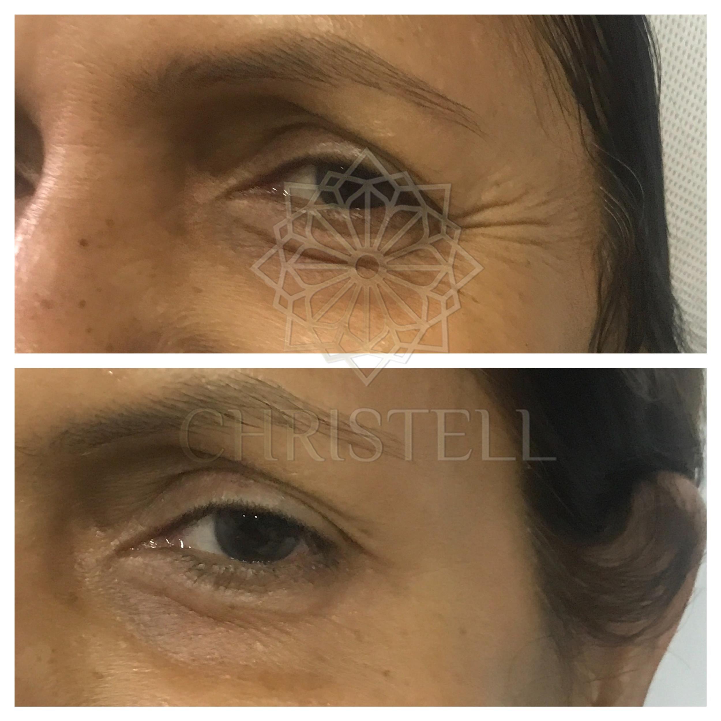 IMG_7176_wm Botox Treatment