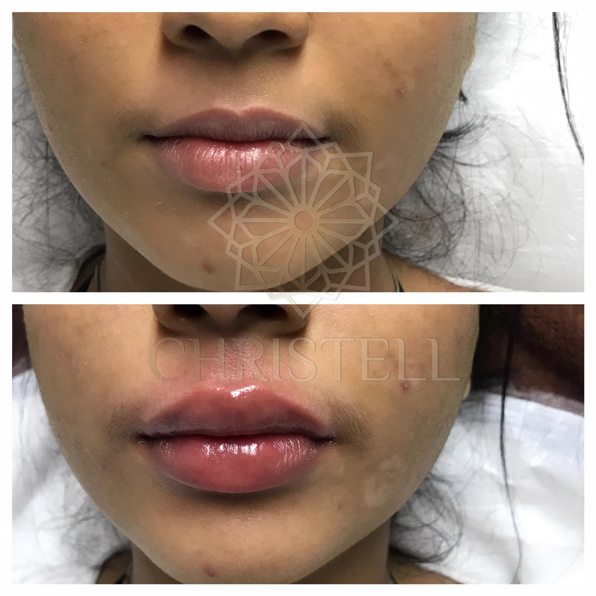 IMG_7491_wm Dermal Fillers (Cheeks,Eyes,Lips, Face)