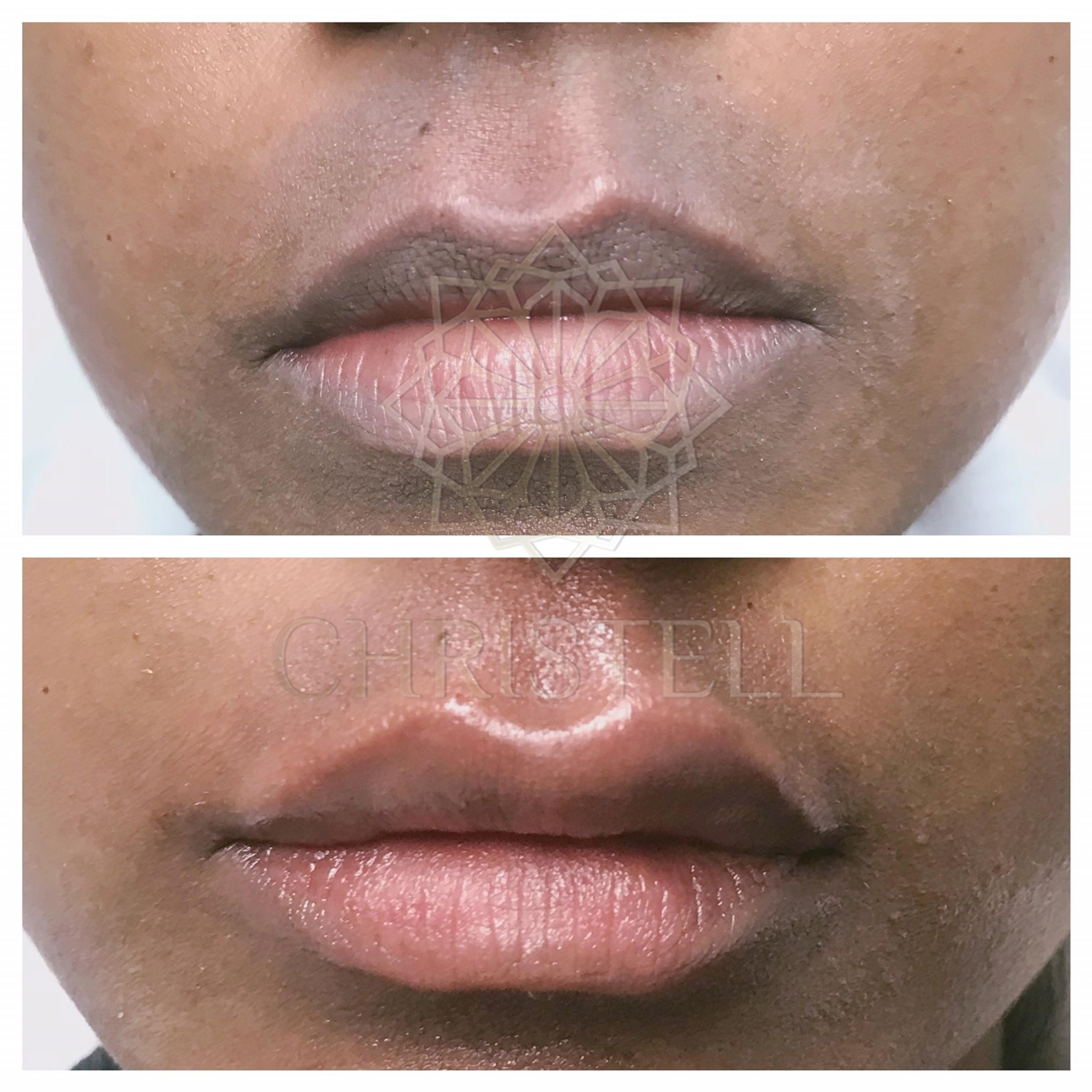 IMG_9524_wm Dermal Fillers (Cheeks,Eyes,Lips, Face)
