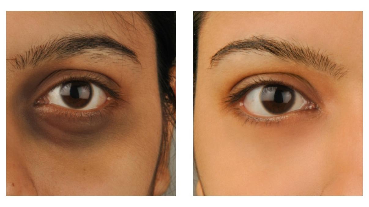 Under-eye-darkness-1 Under eye darkness