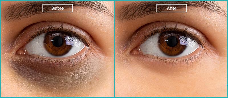 Under-eye-darkness-3 Under eye darkness