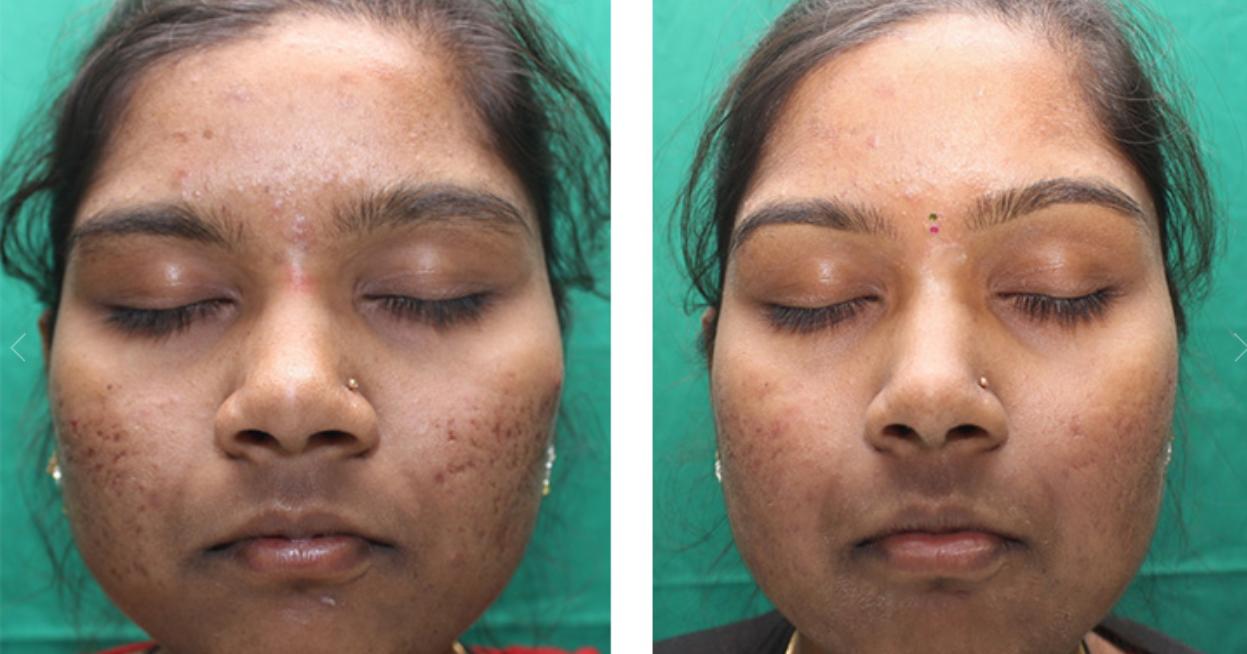 acne-scars-3 High-intensity Skin Lightening