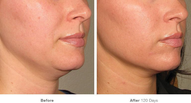 before-after-results-under-chin18-1552334868 High-intensity Skin Lightening